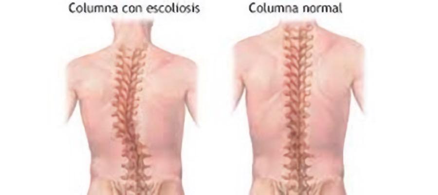 reeducacion-postural-desviaciones-de-columna