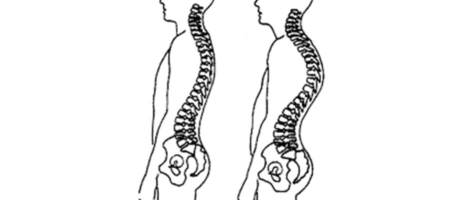 reeducacion-postural-que-puedo-hacer